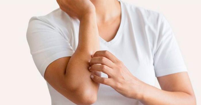 """alt=""""alergia-a-roupa-5-causas-de-alergias-na-pele-que-você-não-sabia"""""""